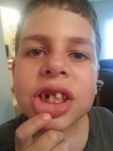 missing and loose teeth